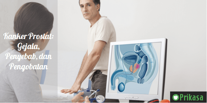 Ilustrasi kanker prostat