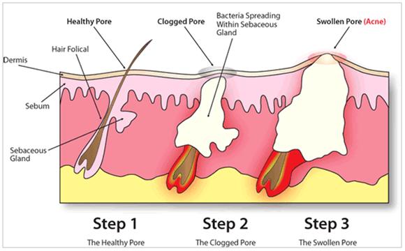 Ilustrasi pembentukan jerawat